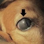 眼のメラノーマ